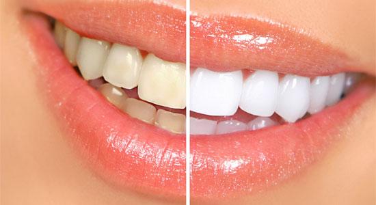 estetska-dentalna-medicina