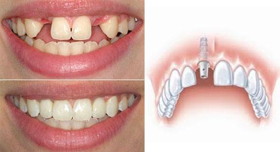 implantologija-1