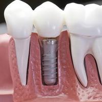 implantologija_icon