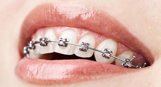 ortodoncija-1